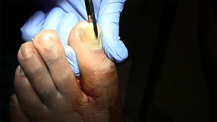 【閲覧注意】爪白癬(つめはくせん)となった両足の爪を剥ぎ取る映像がグロい。
