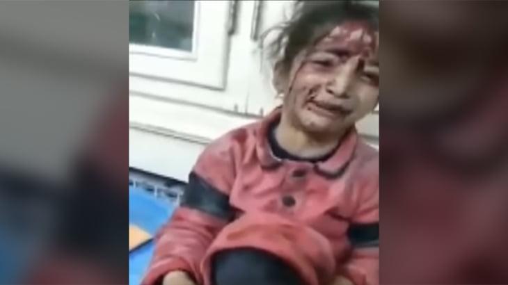 爆撃を受けたシリアの少女「もう歩けないの?」と涙を流す。