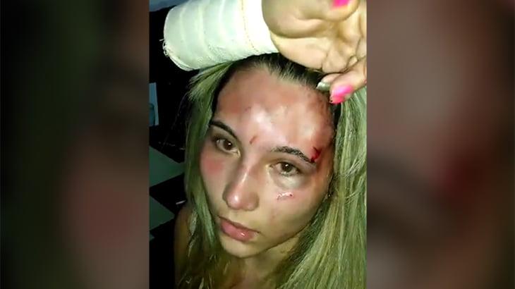彼氏を寝取った女の顔にタバコの火を押し付ける動画。