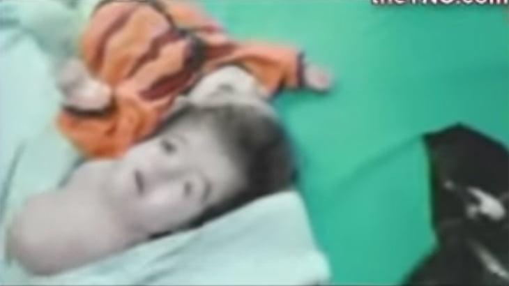 【閲覧注意】エジプトで生まれた2つの顔を持つ赤ちゃんのグロ動画。