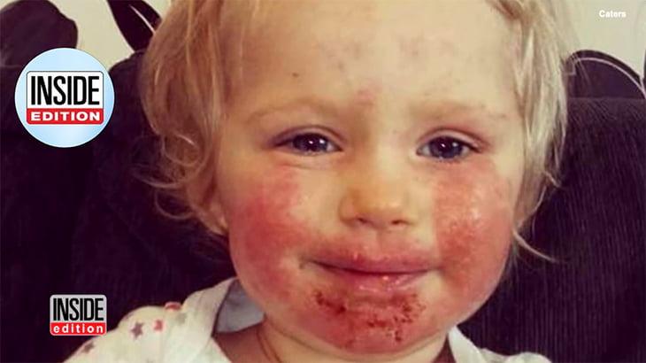 小さな女の子、キスからヘルペスに感染してしまった動画。