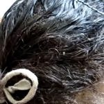 シラミに巣食われた頭。無数に蠢くゾワゾワ動画。