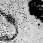 活動中の免疫システム。寄生虫を攻撃する白血球の動画。