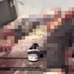 【閲覧注意】ISIS支配地域の住人たち、空爆を受けてこうなる・・・。