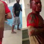 【閲覧注意】病院にやってきた男性の身体、耳は切られ、左腕は切断されていたグロ動画・・・。