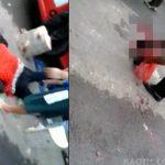 【閲覧注意】事故で頭が割れ脳みそ飛び出して死亡した男性。その脳みそを拾う警察官。