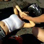 【閲覧注意】バイク事故を起こした女性の足、筋繊維まで丸見えのグロ動画。