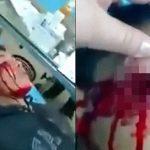 【閲覧注意】銃で顔を撃たれた男の子、右目を失ってしまったグロ動画。