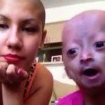 【衝撃映像】早期老化症の女の子と母親。