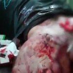 【閲覧注意】右足が付け根から切断されてしまった男性のグロ動画。