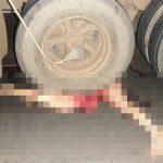 【超!閲覧注意】トラックに轢かれて数メートル引き摺られてしまったグロ画像。
