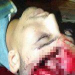 【超!閲覧注意】警察官の自宅に盗みに入った男、銃で撃たれて頭を割られてしまう・・・。