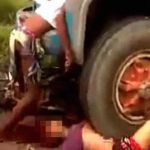 【閲覧注意】バイク2人乗りの女性がトラックと衝突した結果・・・。