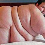 太り過ぎの人々。