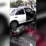 【閲覧注意】自動車事故で両足を失ってしまったドライバー。