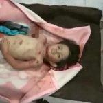 【閲覧注意】爆撃を受けて死亡した男の子、後頭部は破裂していた・・・。