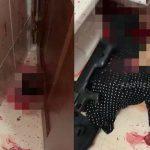 【超!閲覧注意】散弾銃で自殺した人間、顔が吹き飛ばされてしまうグロ動画・・・。
