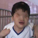 【閲覧注意】ベトナム戦争の余波。枯葉剤により生まれてしまった奇形児たち。