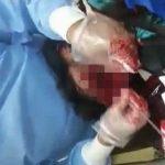 【閲覧注意】顔を爆弾で吹き飛ばされてしまった男性を手術するグロ動画。