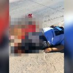 【閲覧注意】バイク事故の女性、両足切断された状態で生き延びてしまったグロ動画。