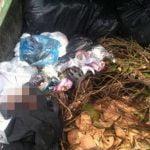 【閲覧注意】ゴミ捨て場に胎児が捨てられてた。【グロ画像】