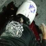 【閲覧注意】バイク事故で顔面を強打して死亡した女性のグロ動画。