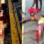 【閲覧注意】列車に轢かれて右脚の骨が丸見えになってしまったグロ動画。