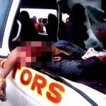 【閲覧注意】事故により脳ミソが飛び出してしまった男性のグロ動画。