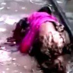 【閲覧注意】列車への飛び込み自殺に失敗した女性、両足を失う。