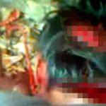 【閲覧注意】マチェーテで腕と頭を切られたこの男性、もうすぐ死ぬ・・・。