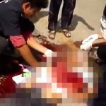 【閲覧注意】自転車に乗った男性、バスに轢かれてとんでもない姿に・・・。