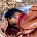 【閲覧注意】マチェーテで顔を大きく切り裂かれてしまった男性の死体。