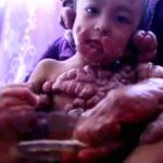 """【衝撃映像】身体に """"異様な腫瘍"""" を持つ男の子。"""