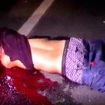 【閲覧注意】バイク事故の男性、左腕が根元から切断されてしまう・・・。