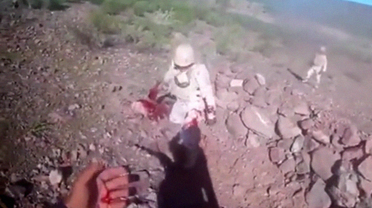 """【閲覧注意】手に持った手榴弾が投げる前に爆発して """"指が吹き飛ばされた"""" 兵士。"""