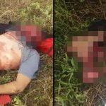 【超!閲覧注意】バイク事故の男性、顔の皮膚が剥がれてしまったグロ動画・・・。