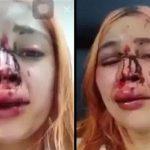 警察官に顔を破壊されてしまった女の子・・・。