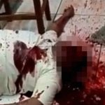 """【閲覧注意】ショットガンで """"顔に大きな穴"""" を開けられて死んだ男性。"""