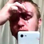 【閲覧注意】自動車事故により、おでこの皮膚がめくれてしまった男性・・・。