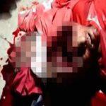 【超!閲覧注意】頭蓋骨が割れ、頭の中が空っぽになった男性のグロ動画。