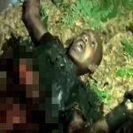 【閲覧注意】自爆テロで死亡した男の死体、怖すぎる・・・。