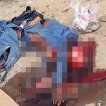 【閲覧注意】バイクに乗った男性、事故で頭蓋骨が剥き出しになってしまう・・・。