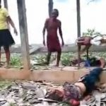 【閲覧注意】バーベキューしていた家族、爆発により多数の負傷者が・・・。