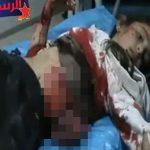 【閲覧注意】空爆を受けた女の子、腹から内臓が飛び出してしまう・・・。