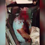 【閲覧注意】自動車事故で頭部がまるごと無くなってしまった男のグロ動画・・・。
