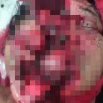 【閲覧注意】女性ライダーが転倒して縁石に顔をぶつけた結果・・・。