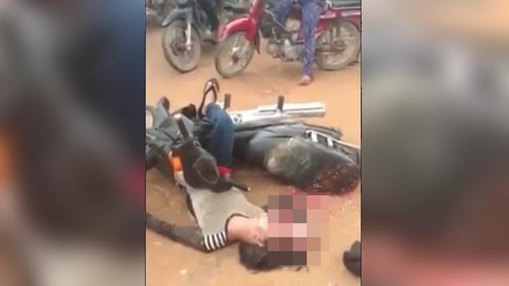 【閲覧注意】事故で死亡した男性、頭蓋骨が割れて脳が飛び出しているグロ動画。