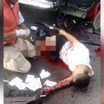 【閲覧注意】事故に遭った男性の太もも、骨が飛び出てる・・・。