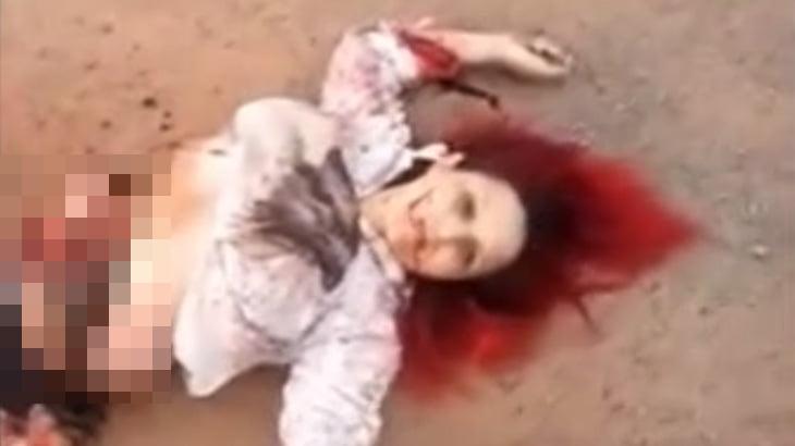 【閲覧注意】トラックに引きずられた女性、内臓飛び出てるけどかろうじて生きているグロ動画・・・。