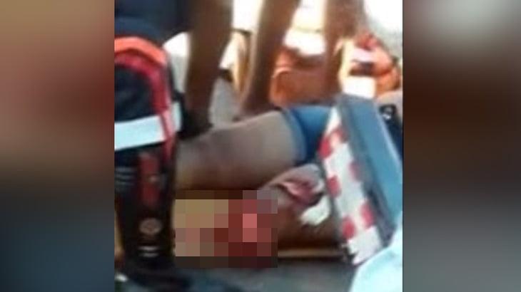 【閲覧注意】車同士の衝突事故に挟まれてしまった女性、左脚を切断されてしまう・・・。